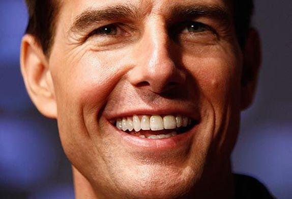 Implantes dentales famosos